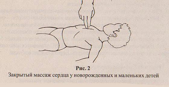 закрытый массаж сердца у новорожденных